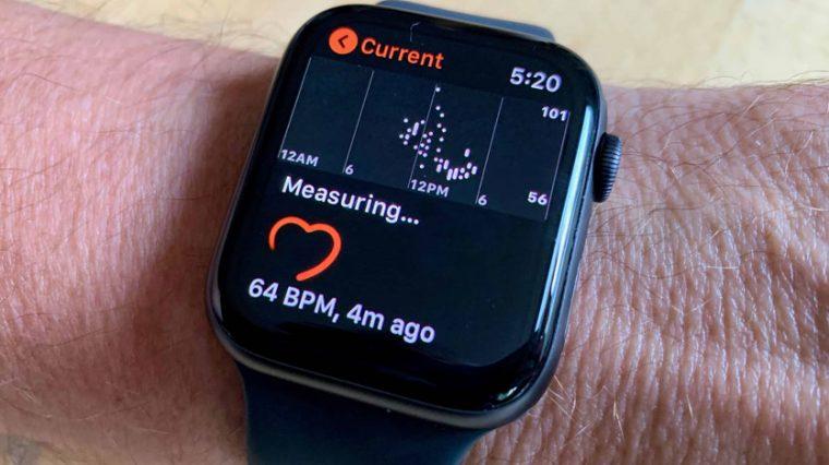 На каких Apple Watch работает ЭКГ. Разобрались