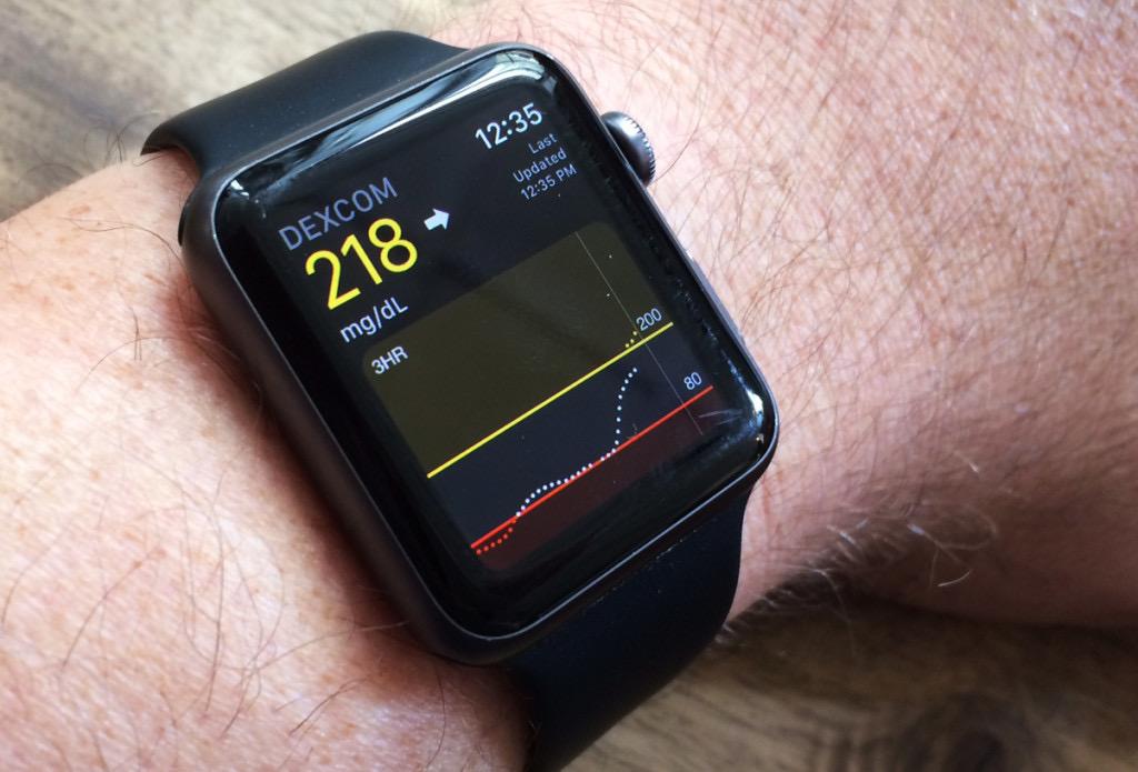Apple Watch будут измерять уровень сахара