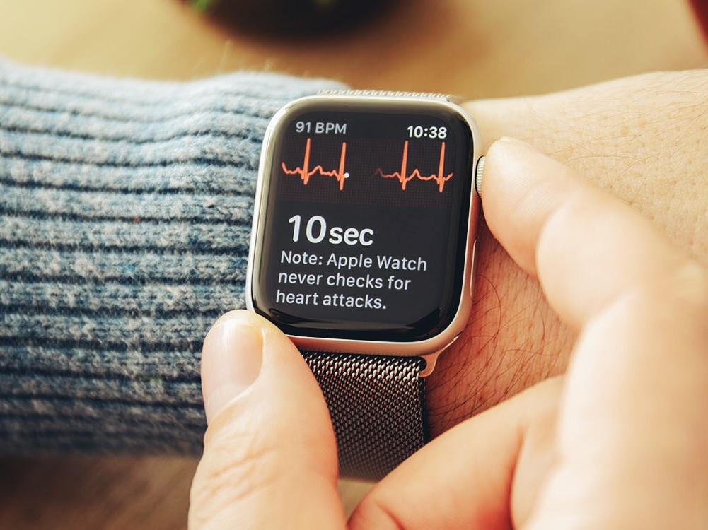 Кардиологи назвали ЭКГ в Apple Watch игрушкой для молодых