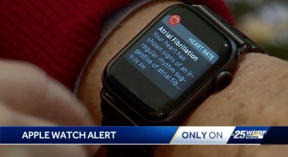 Apple Watch предупредили владельца о мерцательной аритмии, о которой он даже не догадывался