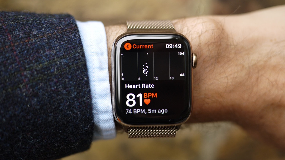 Apple Watch слишком часто отправляют людей к врачам. Только 10% подозрений подтвердились