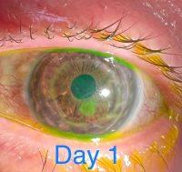 Врач использует макрорежим iPhone 13 Pro Max для проверки глаз пациентов